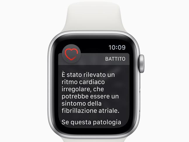 Apple Watch: ora farà anche elettrocardiogrammi!